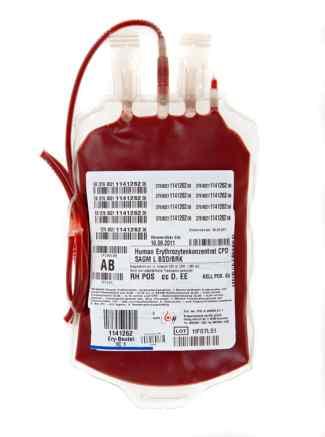 Das Bild zeigt einen Blutbeutel in roter Farbe.