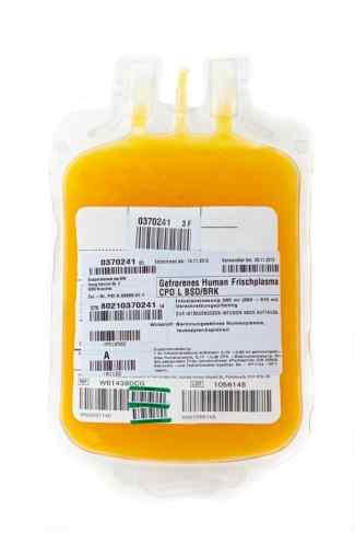 Dieses Bild zeigt einen Blutbeutel in gelber Farbe.